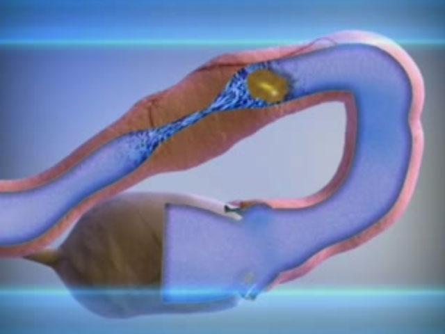 Непроходимость фаллопиевых труб